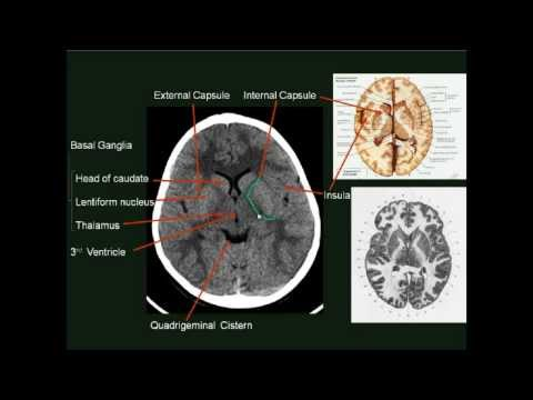 Normal Brain CT MRI  Imaging  ( In Arabic ) Prof  Dr  Mamdou