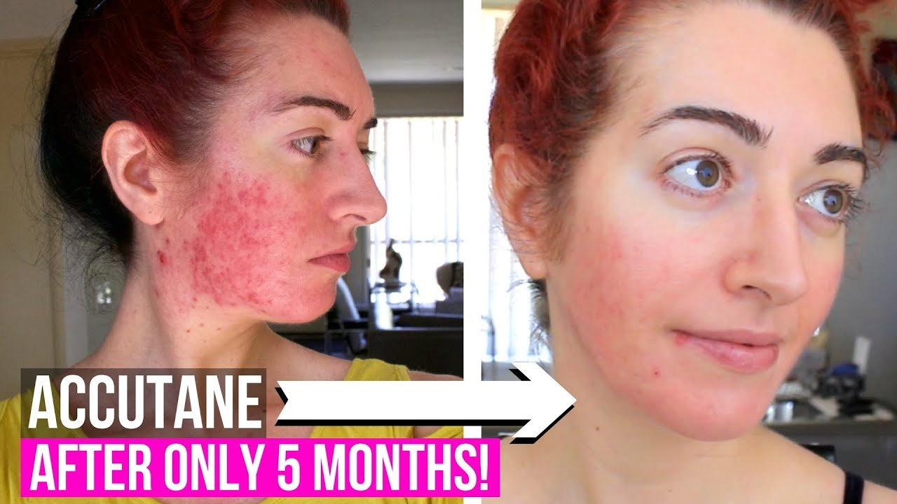 Accutane Side Effects + Mental Health Questions | Month 5 ...