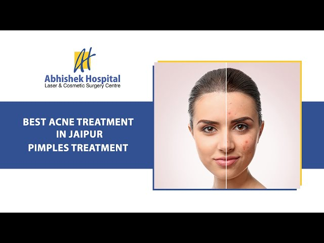 Best Acne Treatment In Jaipur, Pimples Treatment (in Hindi)