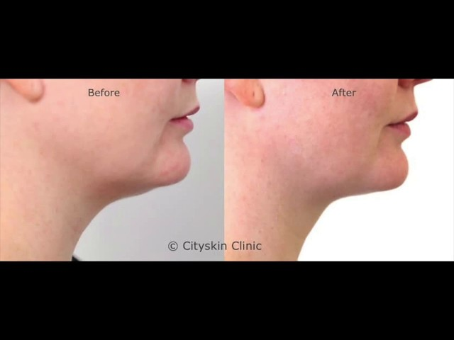 Double chin injections - lessons learnt from 6 months of treating