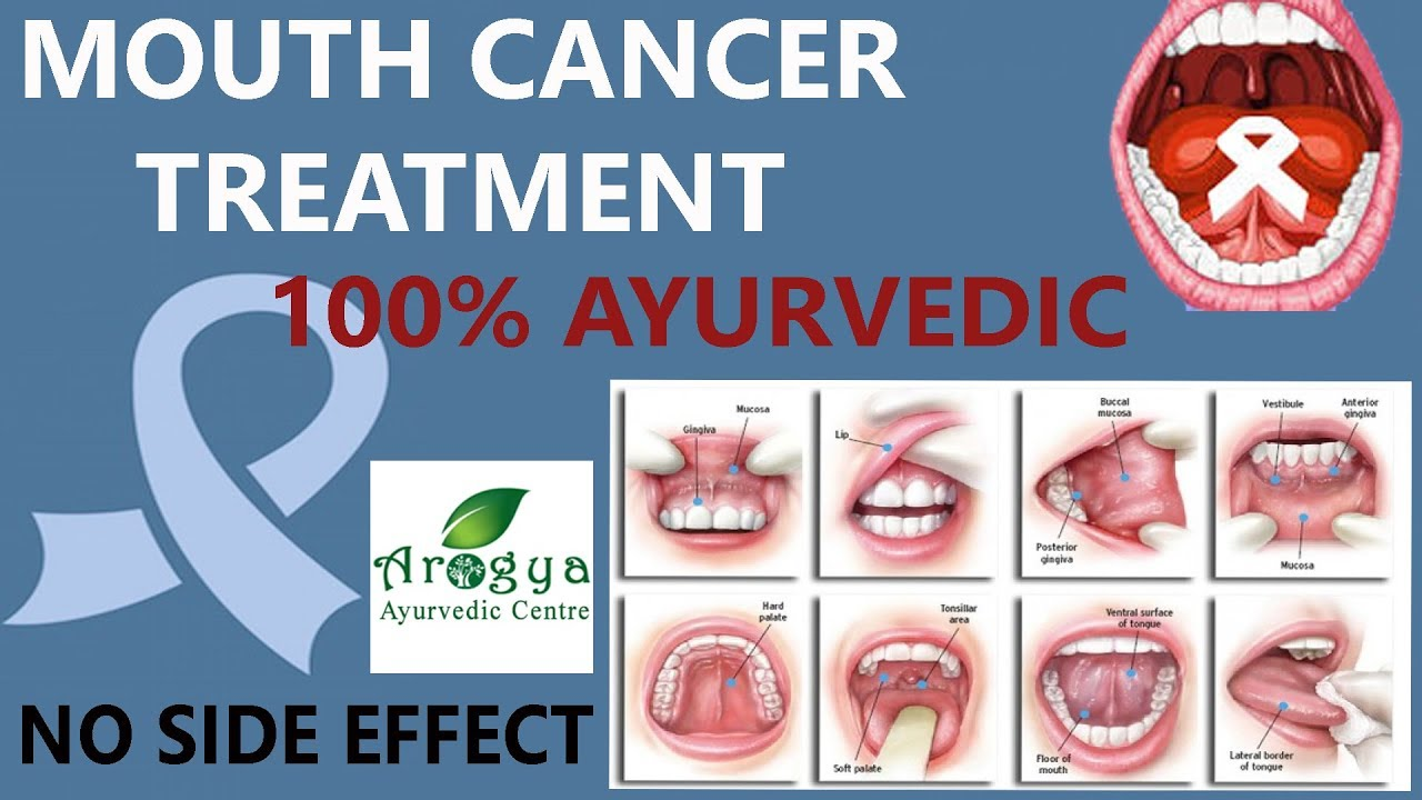 Ayurvedic Medicine & Treatment for Mouth Cancer- Arogyadhamhcc
