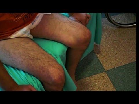 Doctors help paralysed man walk again, patient in disbelief