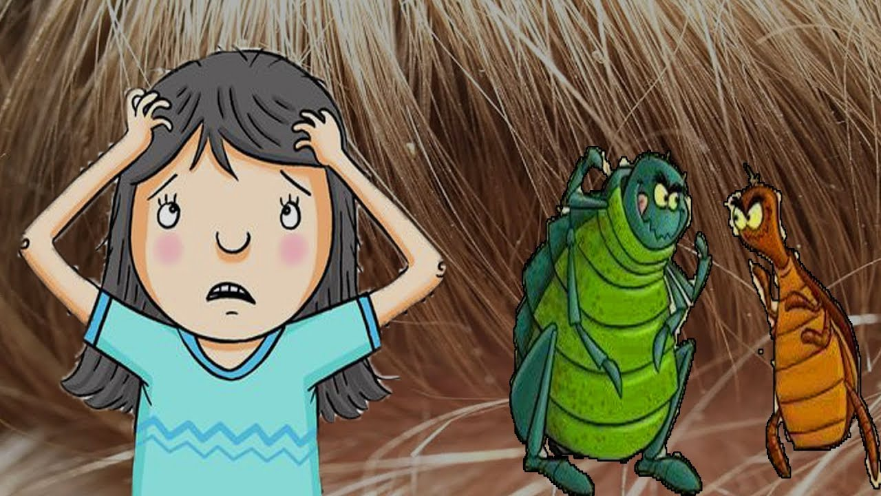 Kết quả hình ảnh cho Doctors Won't Tell You This – Cheap Way to Get Rid of the Head Lice Almost Instantly!