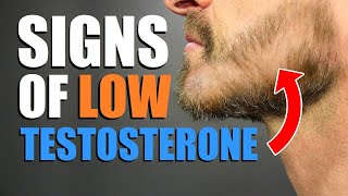 7 Signs You Have LOW Testosterone Levels! (UNDER 30 Years Old)