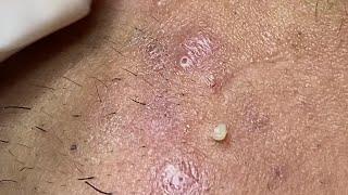 Acne Hematoma In Cheeks And Chin | Mụn Viêm Tụ Máu trên Má Và Cằm - SacDepSpa#54