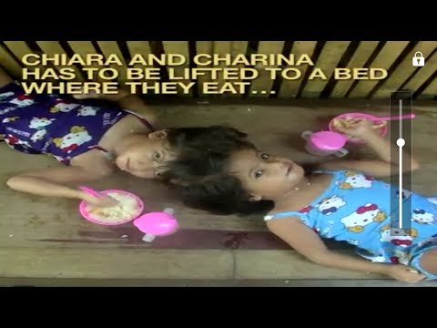 6 YEAR OLD GIRLS CONJOINED TWINS FROM ROXAS,PALAWAN
