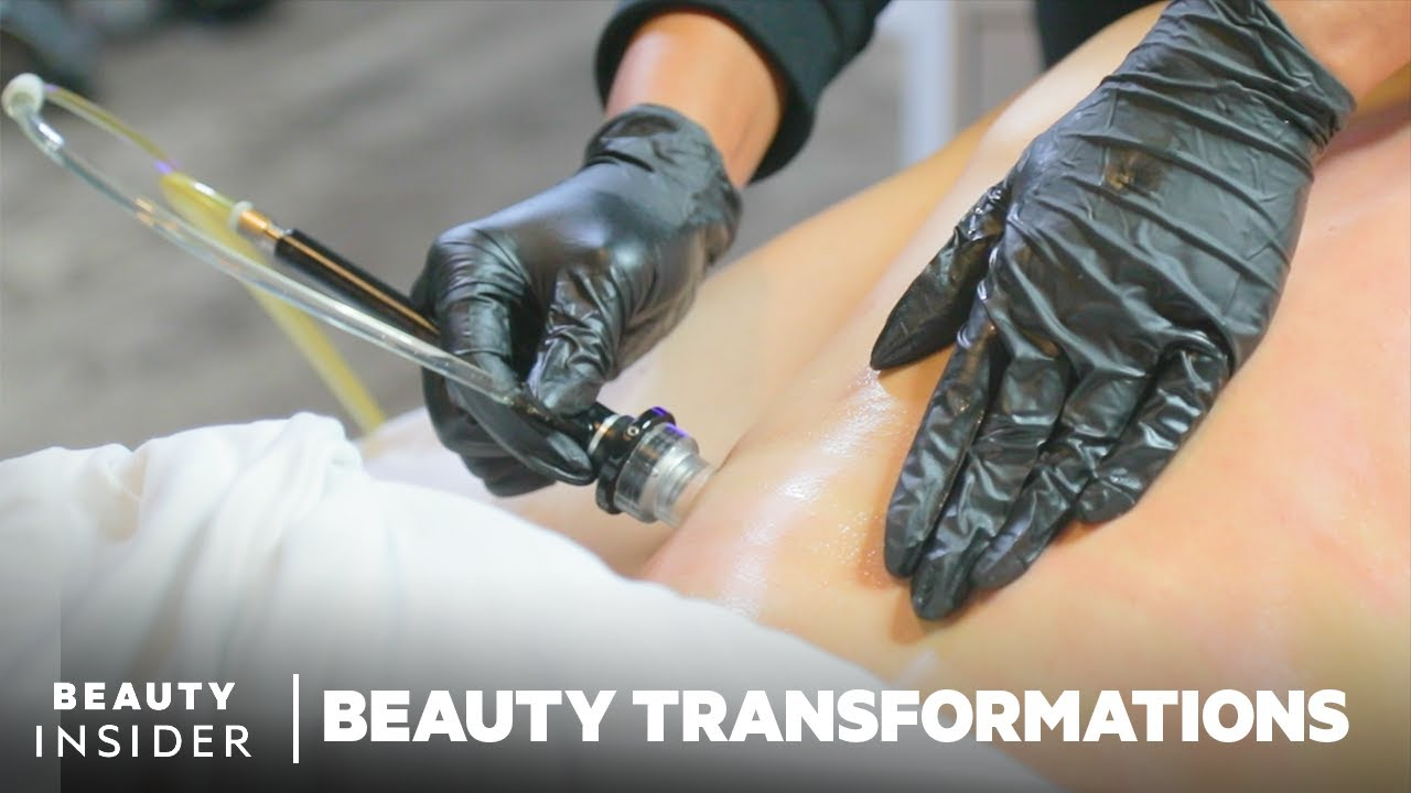 Body Dermalinfusion Exfoliates And Infuses Nutrients To Improve Skin
