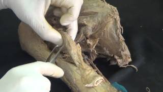 ◄╣ Anatomy Lab Revision Part - 14 ♦ The Axilla and Muscles of Upper Limb (I) ╠►