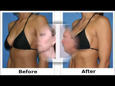 Houston breast surgery
