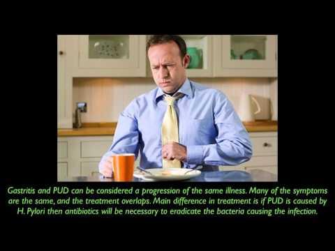 Gastritis vs PUD (PEV)