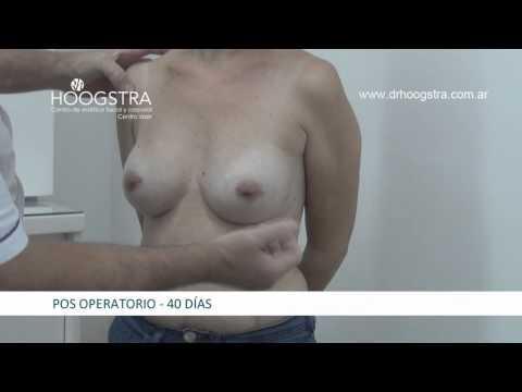 Recambio de Prótesis mamaria (14018)
