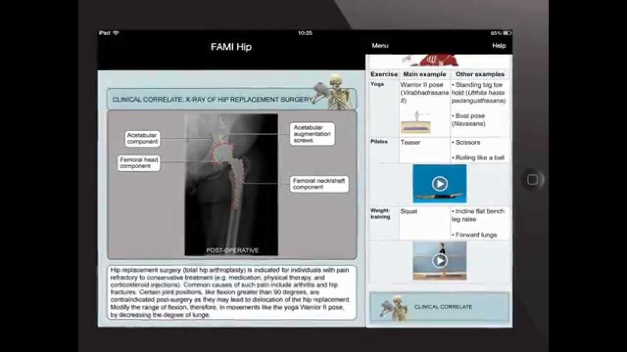 Functional Anatomy for Movement & Injuries App Series - YouTube