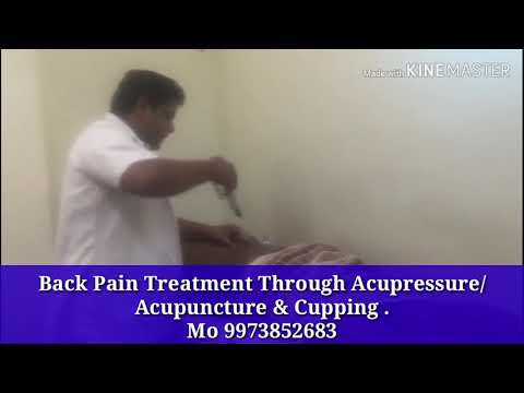 Back pain treatment Through Acupressure/Acupuncture and Cupping, patna Dr Abhilash Kumar Singh,