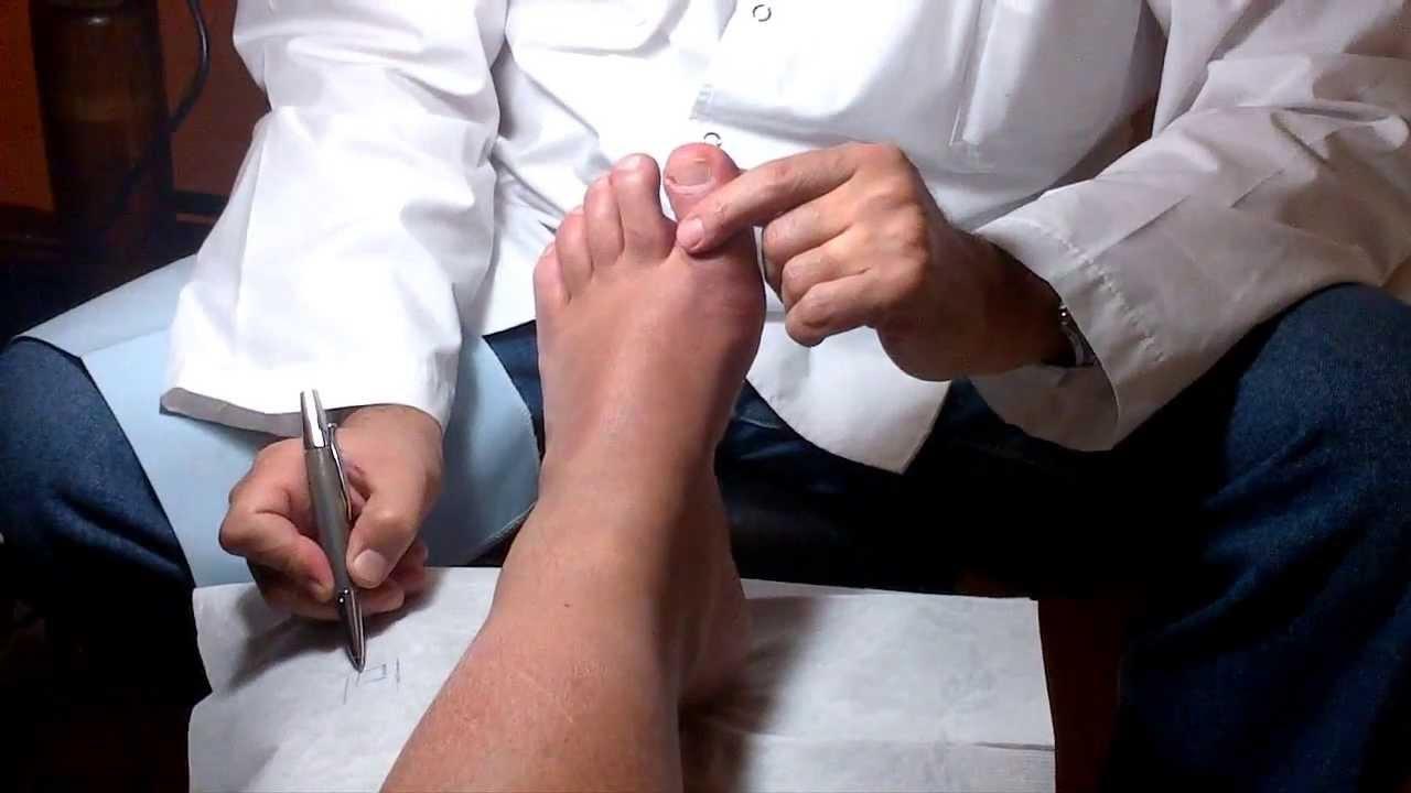 como se cortan la uñas del pie? - YouTube