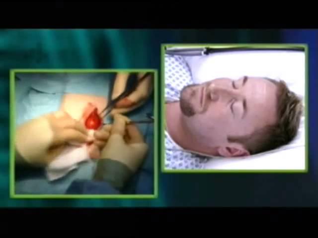 Operatie onder hypnose