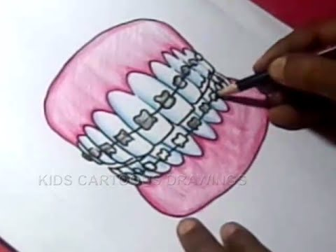 How To Draw Orthodontics Teeth Clips Drawing For Kids