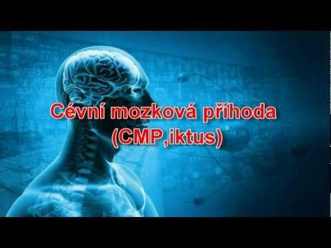 Cévní mozková příhoda (CMP, iktus)