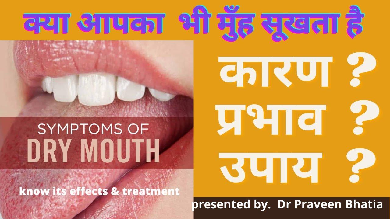 मुंह सूखना(DRY MOUTH) कारण ? प्रभाव  ? उपाय -Reasons ,Effects ,Treatment-Home & Medical by Dr.Bhatia