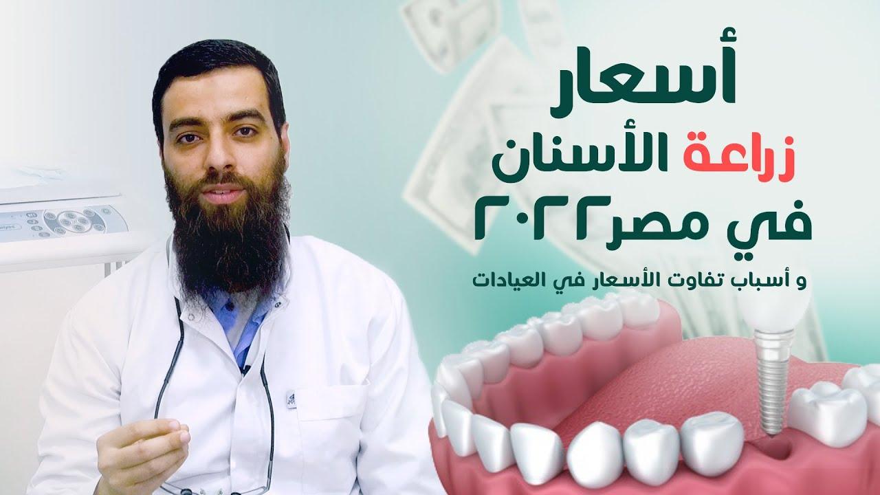 اسعار زراعة الاسنان في مصر 2020 اسباب تفاوت الأسعار د معتز الشوبري Youtube