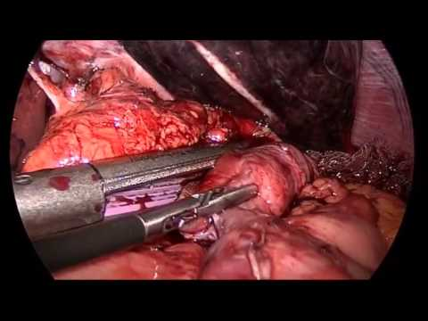Step-by-Step Laparoscopic Revision of Roux-en-Y Gastric Bypass