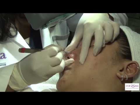 Best Acne treatment in Dubai, Abu Dhabi and New Delhi ( India ) only at Cocoona Centre