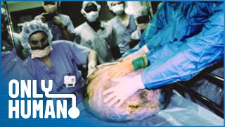 Woman's Stomach Tumor As Big As An Adult Man | Amazing Medical Stories | Only Human