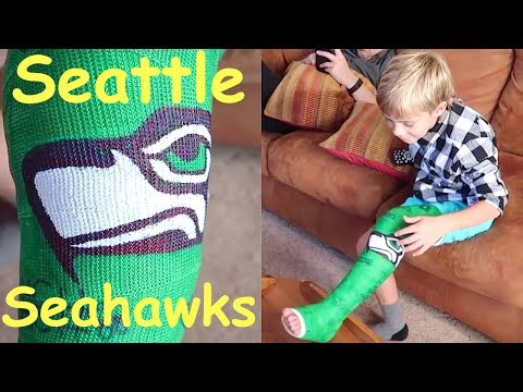 🏈Kid gets a SEATTLE SEAHAWKS Cast for Broken Leg!🏈