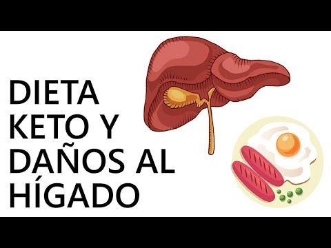 Se puede hacer dieta cetogenica con higado graso