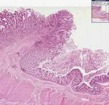 Histopathology Colon--Adenocarcinoma