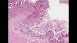 Histopathology Colon--Adenocarcinoma