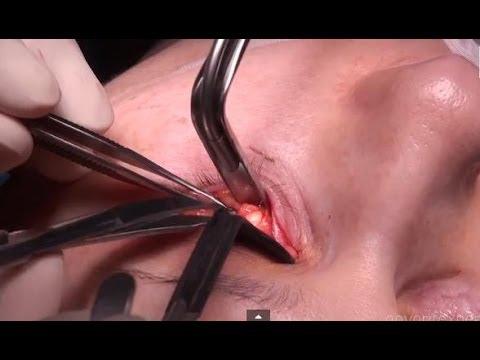 Суфы - прискуловые отеки