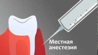Лечение десен аппаратом Вектор (Vector)(, 2010-10-06T09:55:55.000Z)