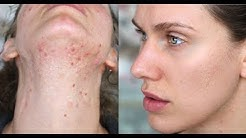 hqdefault - Best Detox Diet For Acne Include