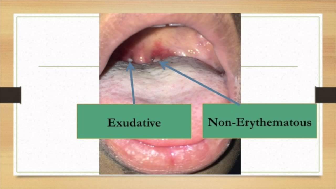 Follicular Tonsillitis (Exudative) - YouTube