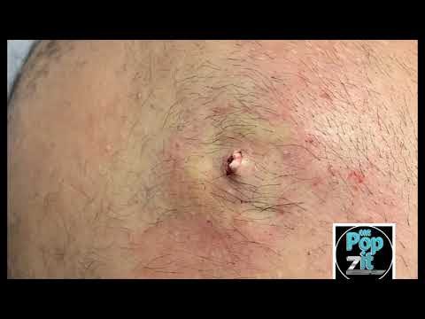 Large inflamed cyst. I+D medical procedure. Large cyst pop. Cyst hits the floor. Juicy pocket.