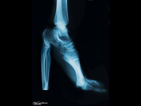 беспокоит косточка на ноге как снять боль при подагре - YouTube