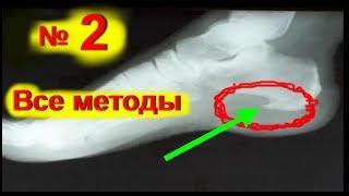 видео Шпора на пятке - симптомы и лечение в больнице и дома