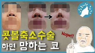 콧볼축소수술하면 망하는 코. 넓은 콧방울은 대부분의 경…