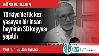 Türkiye'de ilk kez yaşayan bir insan beyninin 3D kopyası yapıldı