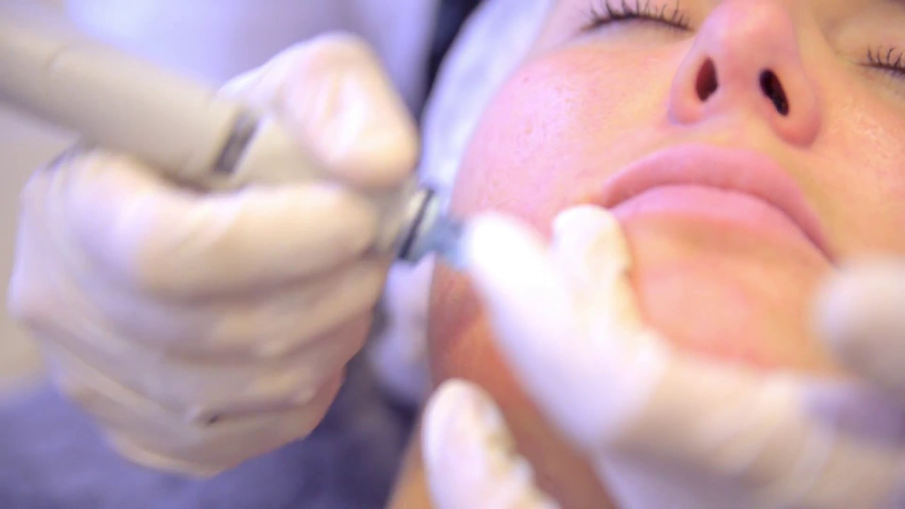Everything You Need To Know Before Treatment At Laser Clinics In ...