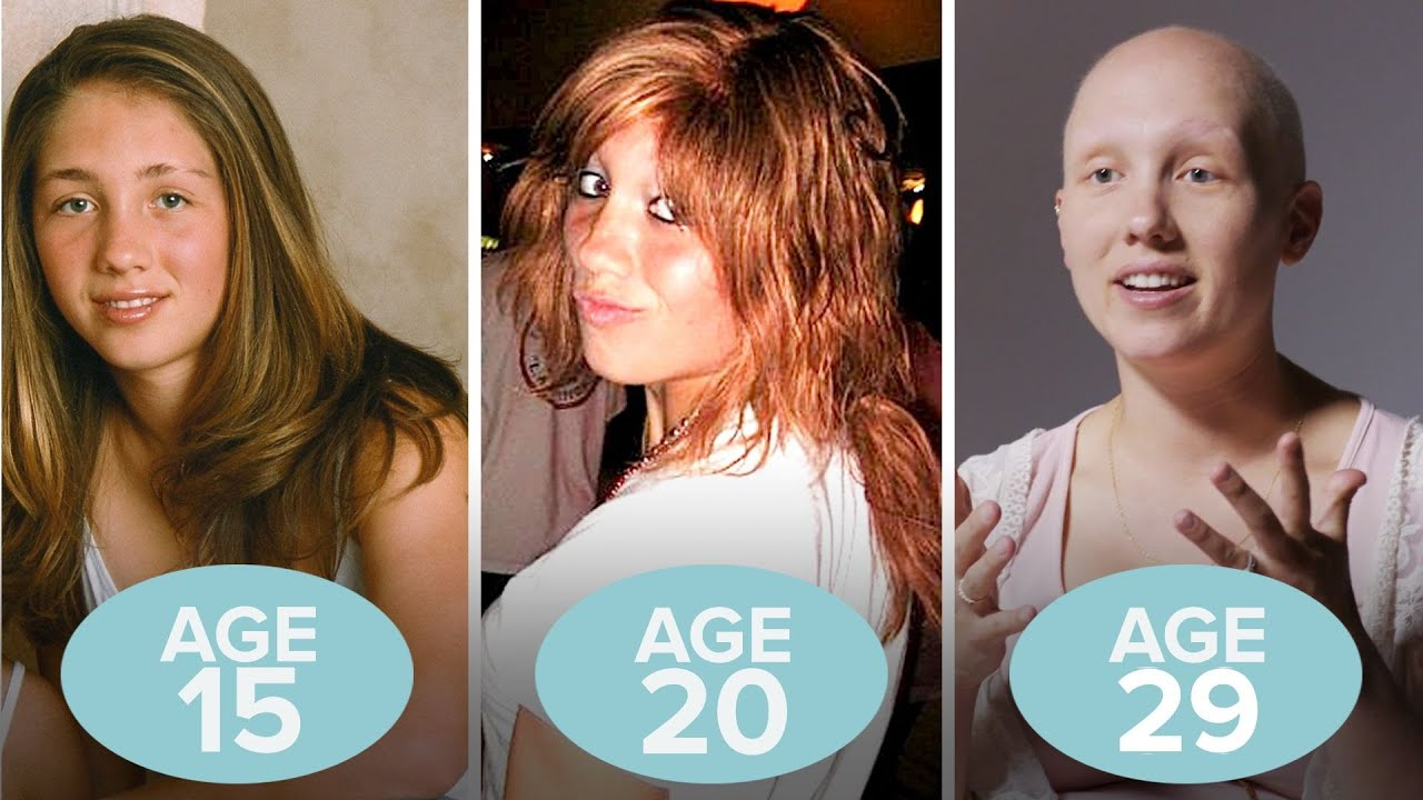 This Woman's Hair Loss in 6 Old Photos | Allure