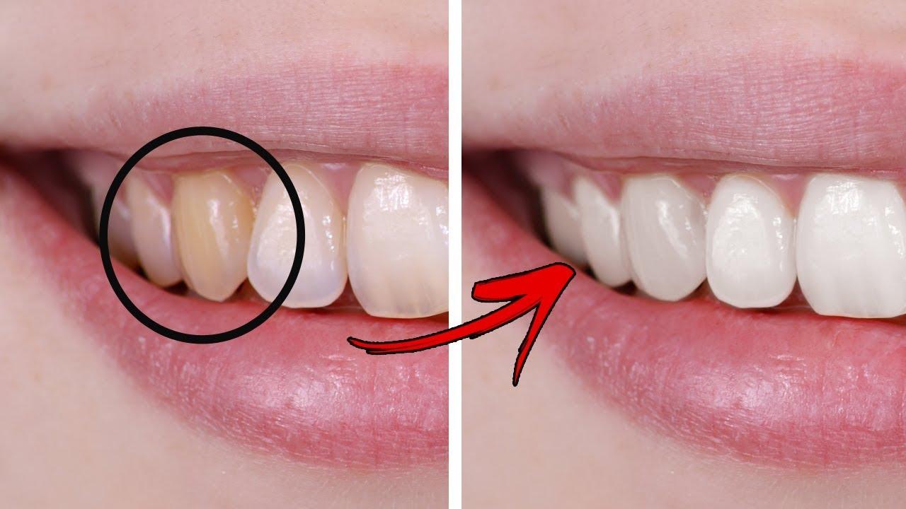 5 Pilihan Cara Termudah Memutihkan Gigi Secara Alami Bebas Efek