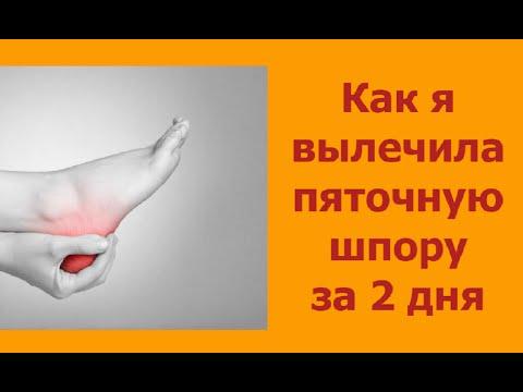 Лечение косточек на ногах народными средствами, как убрать