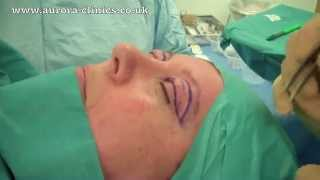 Live Eyelid Correction Surgery Performed Under Local Anaesthetic