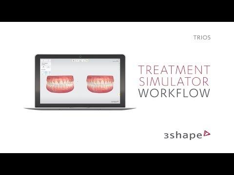 3Shape TRIOS 4 Intraoral Scanner - Henry Schein Equipment