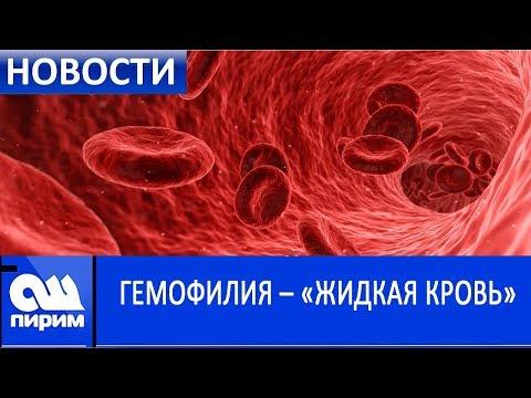 ГЕМОФИЛИЯ – «ЖИДКАЯ КРОВЬ». Новости Ош Пирим. 17.04.2019