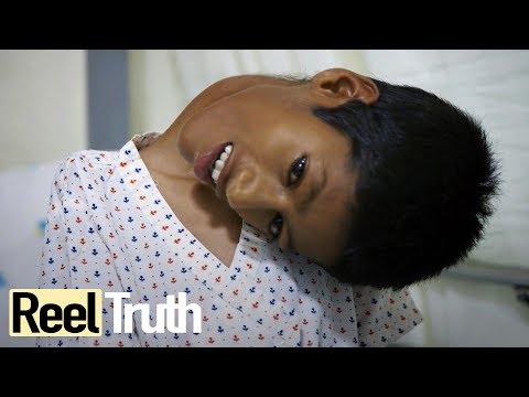 Mahendra Ahirwar: The Boy Who Sees The World Upside Down  Medical Documentary  Documental