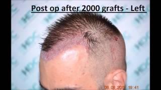 Hairline -  Hair Transplant Result  -HDC Hair Clinic