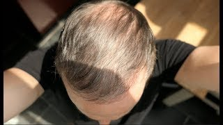 5 MONTHS AFTER MY HAIR TRANSPLANT