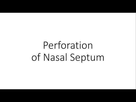 Perforation of Nasal Septum - For Medical Students